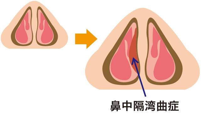 鼻中隔が弯曲する原因